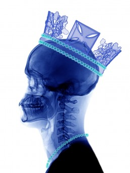 Artwork with a blue x-ray of a head with a crown